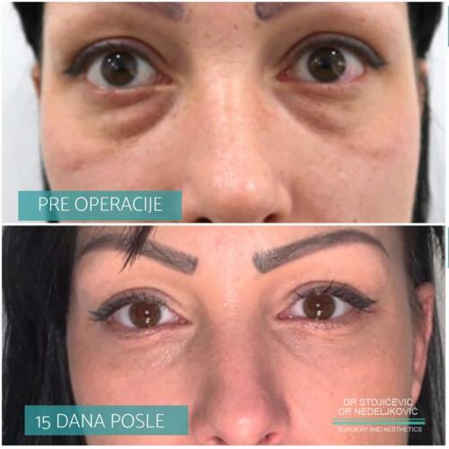 Operacija očnih kapaka, dr Sttojićević, dr Nedeljković, 2