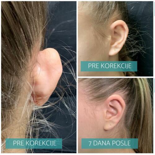 Korekcija ušiju, operacija klempavosti