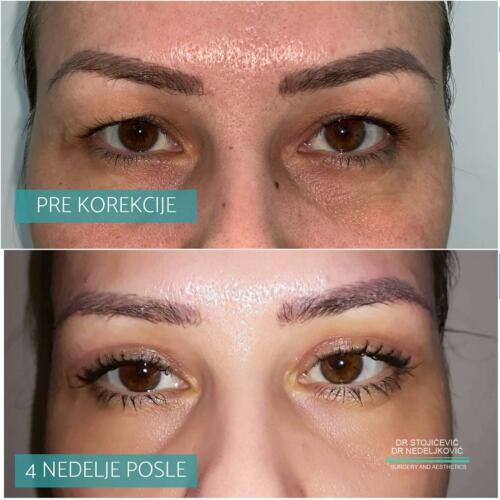 Operacija očnih kapaka, dr Sttojićević, dr Nedeljković, 1