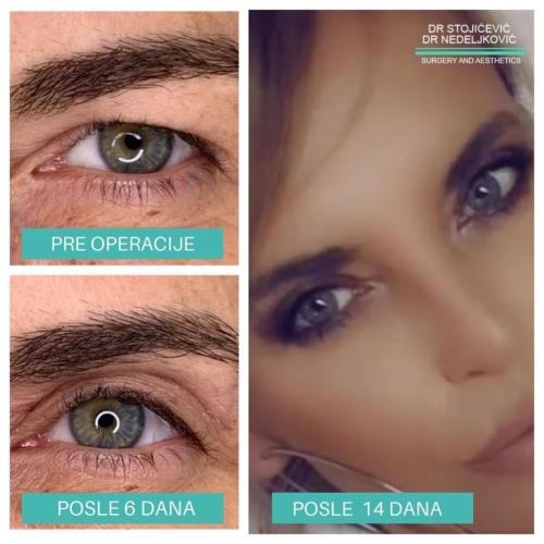 Operacija očnih kapaka, dr Sttojićević, dr Nedeljković, 3