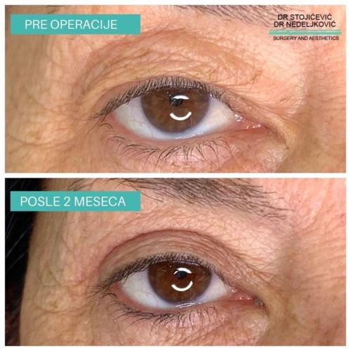 Operacija očnih kapaka, dr Sttojićević, dr Nedeljković, 4
