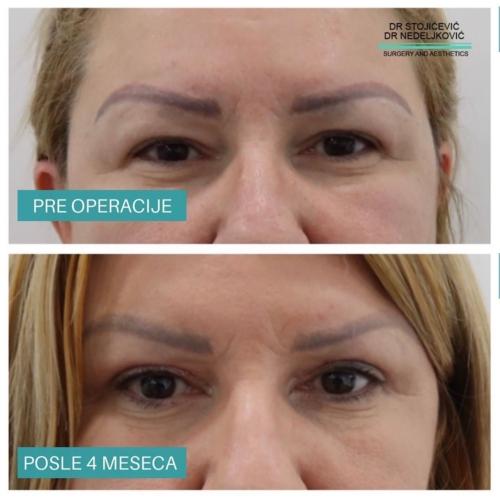 Operacija očnih kapaka, dr Sttojićević, dr Nedeljković, 6