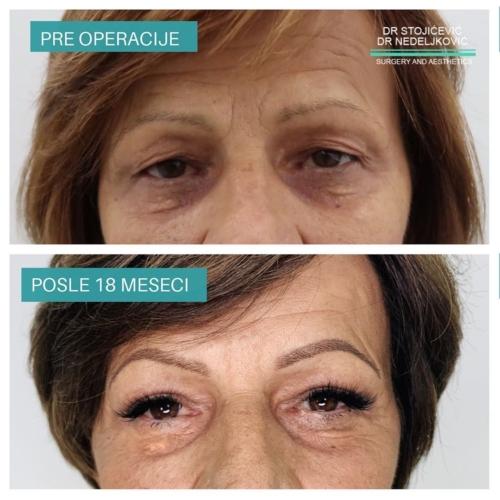 Operacija očnih kapaka, dr Sttojićević, dr Nedeljković, 8