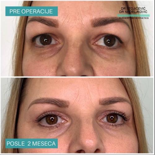 Operacija očnih kapaka, dr Sttojićević, dr Nedeljković, 12