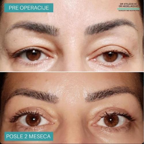 Operacija očnih kapaka, dr Sttojićević, dr Nedeljković, 7