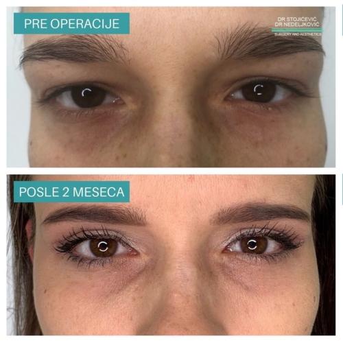 Operacija očnih kapaka, dr Sttojićević, dr Nedeljković, 11