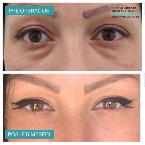 Operacija očnih kapaka, dr Sttojićević, dr Nedeljković, 13