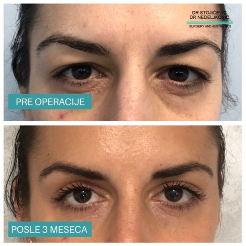 Operacija očnih kapaka, dr Sttojićević, dr Nedeljković, 14