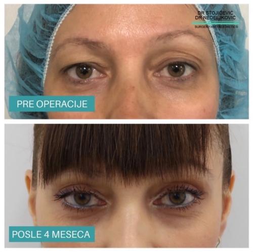 Operacija očnih kapaka, dr Sttojićević, dr Nedeljković, 10