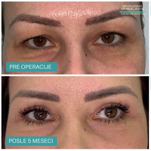 Operacija očnih kapaka, dr Sttojićević, dr Nedeljković, 18