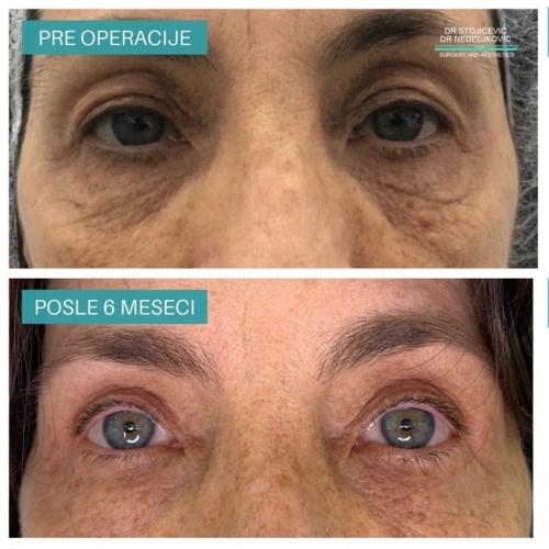 Operacija očnih kapaka, dr Sttojićević, dr Nedeljković, 17