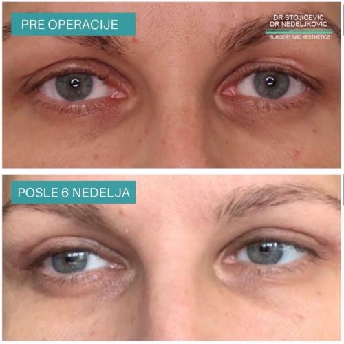 Operacija očnih kapaka, dr Sttojićević, dr Nedeljković, 15