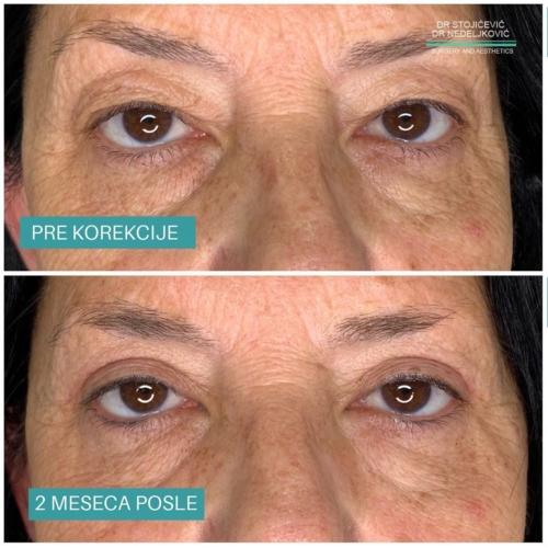 Operacija očnih kapaka, dr Sttojićević, dr Nedeljković, 20
